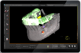 Dual Scan 3D Conebeam for Dental Implant Planning